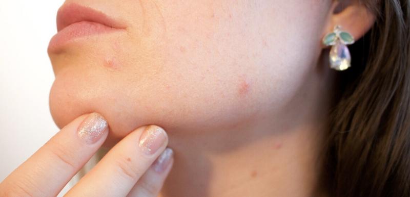 Mozolji akne