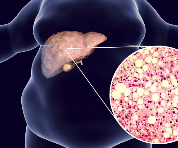 Kako očistiti zamaščena jetra na naraven način?